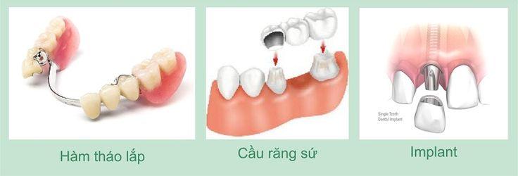 3 Cách trồng răng giả an toàn hiệu quả